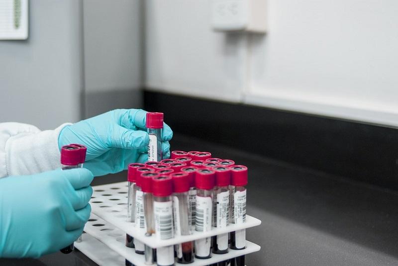 тест анализ медицина